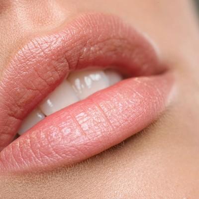 Lip Enhancement (Shaping & Volumising)
