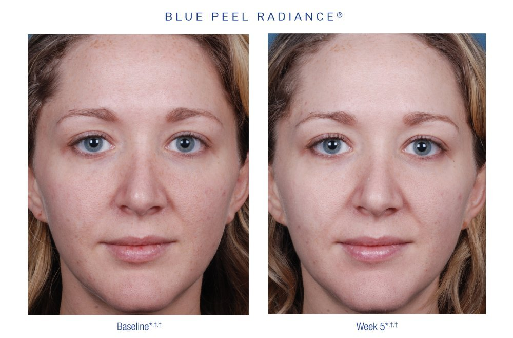 Obagi - Blue Peel Radiance Facial and Peel