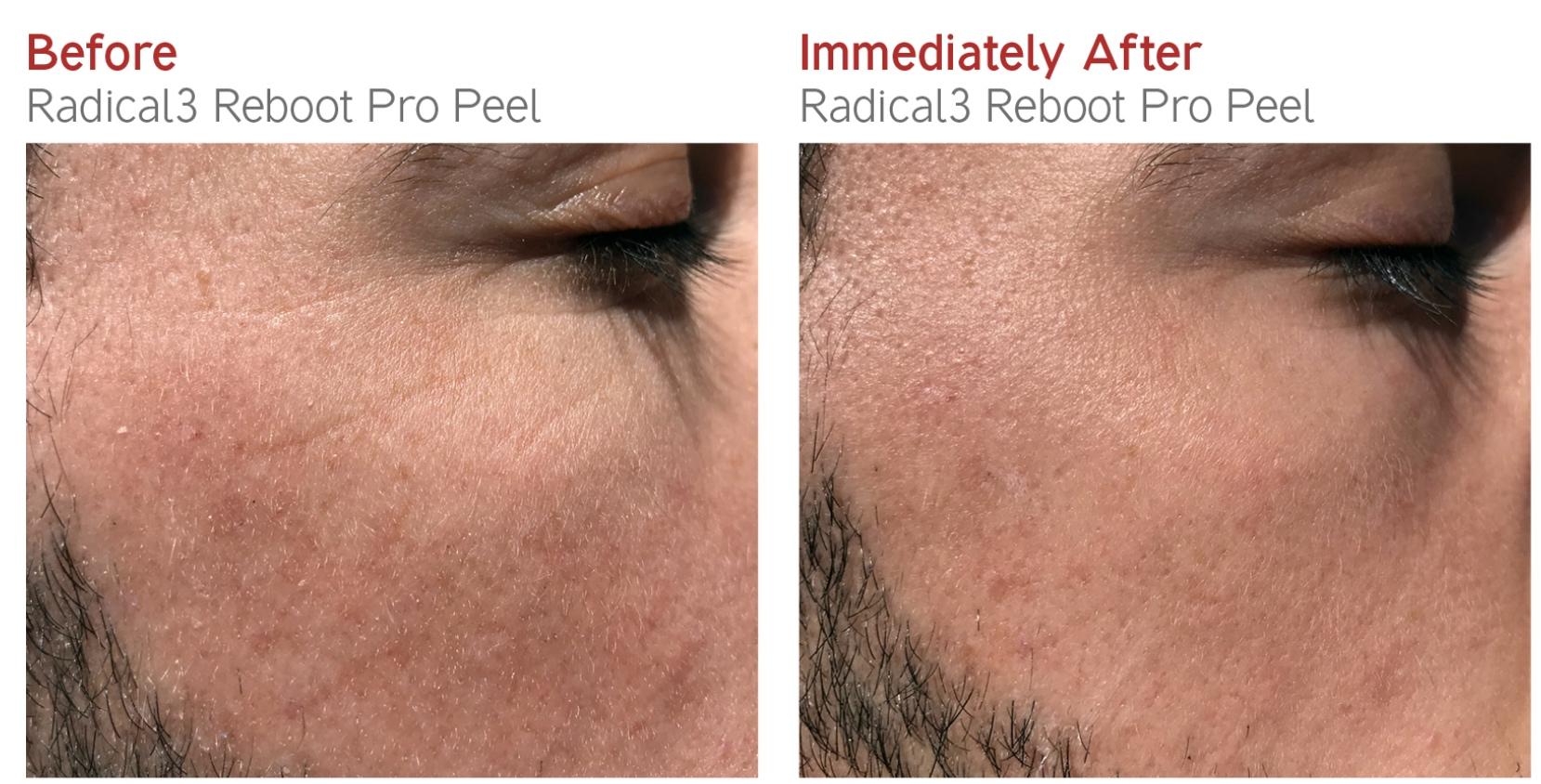Before-After - Radical3 Reboot Pro Peel