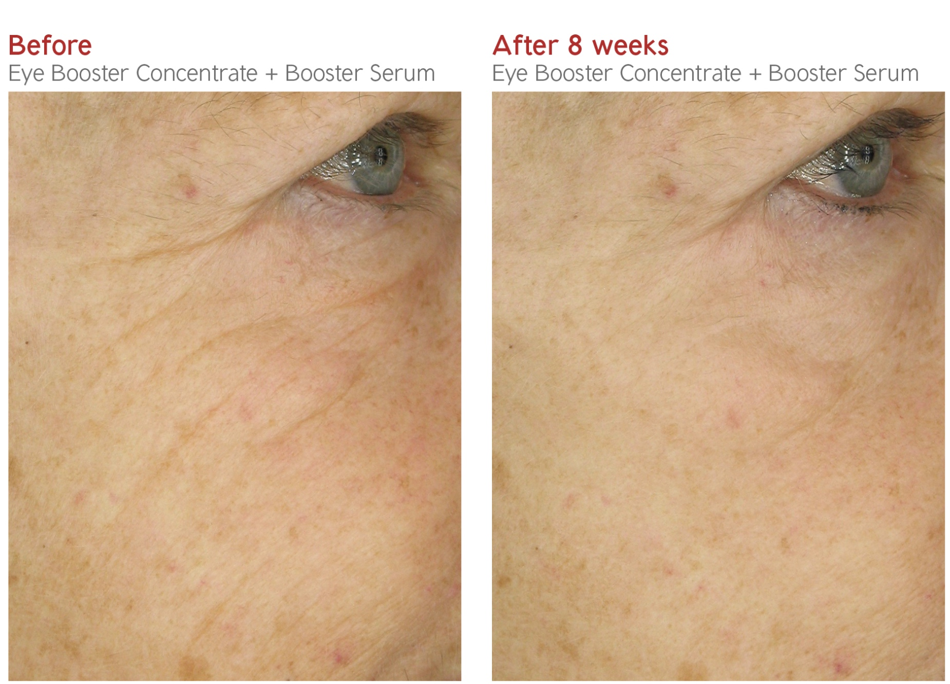 Before-After - Eye Booster Concentrate + Booster Srum