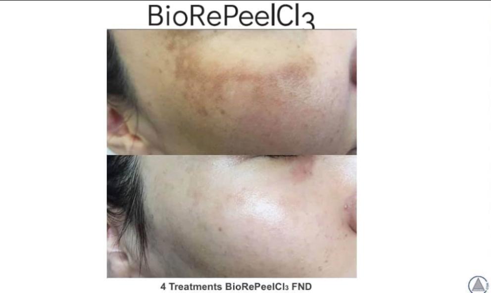 BioRePeelCI3 FND